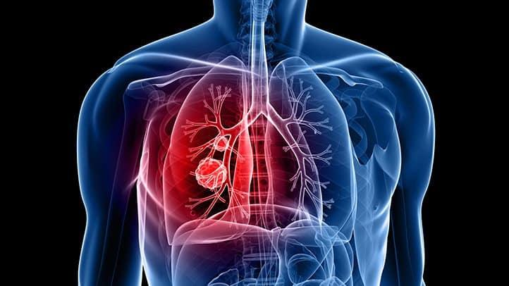 Photo of #إنجاز طبي جديد لمعالجة مرض #سرطان_الرئة